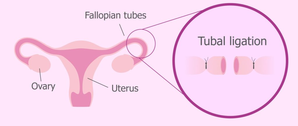 Tubal ligation diagram